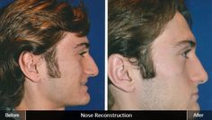 Rhinoplasty can change the shape of your nose and give you a more attractive and youthful look. Dr. Wafik Hanna is an expert in rhinoplasty and nose contouring. http://www.hannamd.com/facial-cosmetic-procedures/hinsdale-rhinoplasty-nose-job.html