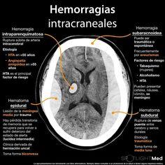 Radiology Student, Radiology Imaging, Medical Imaging, Medical Students, Brain Anatomy, Human Anatomy And Physiology, Medical Anatomy, Body Anatomy, Medicine Notes