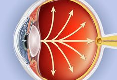 This is the most common form of glaucoma, affecting about three million Americans. It happens when the eye's drainage canals become clogged over time.