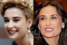 Demi Moore y sus nuevos dientes, antes y despues