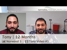 Hair Loss Treatment Before and After   1 Year Follow-up (Tony) -  How To Stop Hair Loss And Regrow It The Natural Way! CLICK HERE! #hair #hairloss #hairlosswomen #hairtreatment Natural Transplants, Hair Restoration Clinic   Call Us 844-327-HAIR (4247)    Hair Loss Treatment Before and After   1 Year Follow-up (Tony) Rockstar Tony makes an appearance one year... - #HairLoss