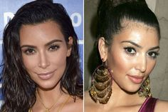 She hallucinates with Kim Kardashians face before surgery! - Care - Skin care , beauty ideas and skin care tips Plastic Surgery Quotes, Botched Plastic Surgery, Plastic Surgery Gone Wrong, Kardashian Plastic Surgery, Cheek Fillers, Liposuction, Rhinoplasty, Laser Hair Removal