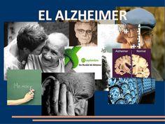 trabajo sobre el Alzheimer