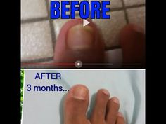 How to get rid of Toenail Fungus with Bleach!! - YouTube
