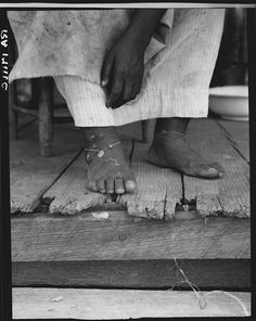 Sharecropper's feet with dimes around her ankles to prevent headaches, Hinds County, Mississippi. Photograph by Dorothea Lange, June 1937.