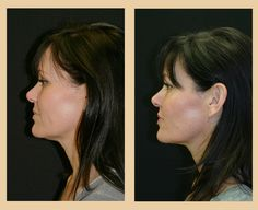 Ultherapy before and after.  This is one of our actual patients.....Great results!  (look at her jaw line and lower face)