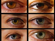 Signs Of Disease In The Eye - Business Insider Eye Exam, Loving Your Body, Genetics, Disorders, Book Lovers, Health Tips, Healthy Lifestyle, Canning, Eyes