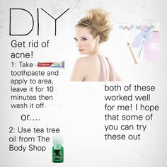 DIY GET RID OF ACNE!