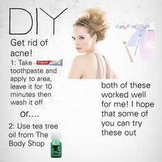 DIY GET RID OF ACNE!
