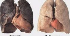 Anti Smoking System: smokers lungs with enlarged heart vs healthy lungs. Respiratory Therapy, Respiratory System, Enlarged Heart, Intestinal Parasites, Natural Beauty Remedies, Massage, Health Class, Heart Conditions, Urinary Tract Infection