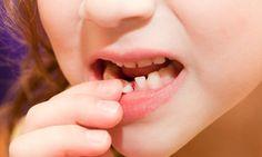 Được xem là cách chỉnh hình răng thưa tốt nhất, vừa đảm bảo thẩm mỹ lại không xâm lấn răng, bảo tồn răng thật 100%. Cho dù mức độ thưa to hay nhỏ thì niềng răng cũng phát huy được hiệu quả tối đa. Khi niềng răng, không chỉ đều chỉnh mức độ thưa của răng mà còn phải chỉnh khớp cắn, chỉnh hai hàm trên dưới cùng một lúc để khớp cắn phù hợp.