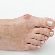 My Aching Feet: 8 Symptoms of Arthritis in Toes