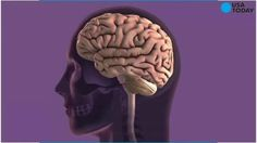 Researchers at Harvard this week offered a new theory of Alzheimer's Disease that - if true - would upend our understanding of the disease and suggest new routes for treatment and prevention. Alzheimer Test, Alzheimers, Alzheimer's Brain, Brain Health, Mental Health, Nervous Breakdown, Mental Breakdown, Genital Herpes Cure, Home Remedies For Herpes