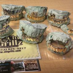 Chicago GoldTeeth Grillz.. Diamond Teeth Grills