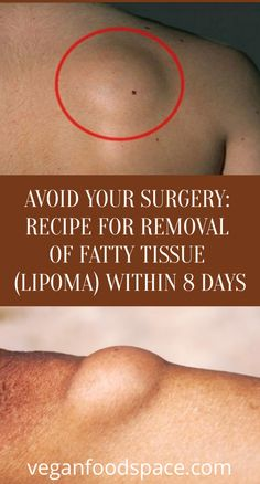 Avoid Your Surgery: Recipe For Removal Of Fatty Tissue (Lipoma) Within 8 Days - Vegan Food Space Tips To Gain Weight, Weight Loss For Men, Diet Plans To Lose Weight, How To Lose Weight Fast, Weight Loss Eating Plan, Weight Loss Detox, Weight Loss Challenge, Weight Loss Program, Fitness Tips For Women