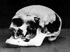 Andrew Borden's Skull showing the damage from the attack