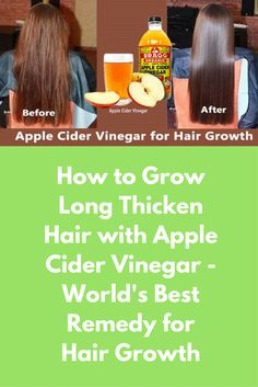 How to Grow Long Thicken Hair with Apple Cider Vinegar - World's Best Remedy for Hair Growth Today I am telling you about the easy and efficient hair growth remedy. With this, your hair will grow much faster and will become thick, long and black. Along wi Hair Mask For Growth, Hair Remedies For Growth, Hair Growth Tips, Hair Loss Remedies, Hair Thickening Remedies, Apple Cider Vinegar Cellulite, Apple Cider Vinegar Remedies, Apple Cider Vinegar For Hair, Vinegar Hair