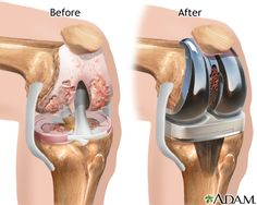 Knee joint replacement - MedlinePlus