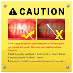 Well-made Teeth Whitening Mouth Guard Teeth Whitening System, Charcoal Teeth Whitening, Natural Teeth Whitening, Swollen Gum, Black Skin Care, Teeth Bleaching, Stained Teeth, Oral Hygiene, Opi