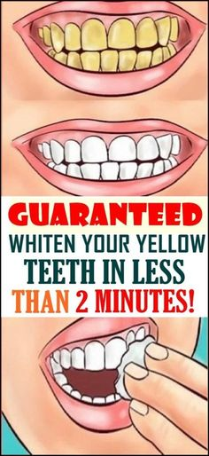 Whiten Your Yellow Teeth In Less Than 2 Minutes! Whiten Your Yellow Teeth In Less Than 2 Minutes! Whiten Your Yellow Teeth In Less Than 2 Minutes! Health Tips For Women, Health And Beauty Tips, Health Advice, Teeth Whitening Remedies, Natural Teeth Whitening, Teath Whitening, White Teeth Remedies, Teeth Health, Oral Health