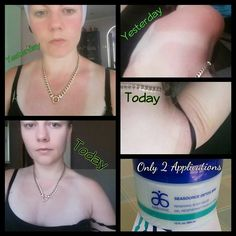The pictures speak for themselves. I truly love this product. It's the best product I've ever used when it comes to sunburn. No peeling for me this time. Arbonne Renewing Body Gelee