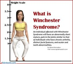 dating someone with klinefelter syndrome Study to date describing the  information on klinefelter syndrome  on klinefelter syndrome as a result, people with xxyy weren't being.