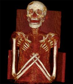 Researchers in Croatia have discovered that a 2,300-year-old mummy they thought belonged to an Egyptian woman named Kareset actually contains the body of a man who died 600 years earlier. Around 2,900 years ago, an ancient Egyptian man, likely in his 20s, passed away after suffering from a rare, cancerlike disease that may also have left him with a type of diabetes. When he died he was mummified & at some point the mummy was transferred to the 2,300 year-old sarcophagus of a woman named Kare...