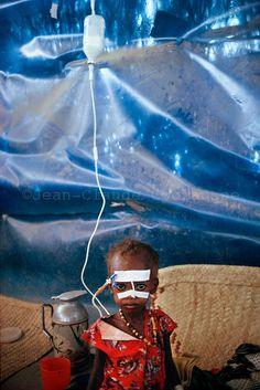 Northern Kenya. A starved Somali refugee child at MSF, Medecins sans Frontieres  (MSF) (Doctors Without Borders) medical center at Liboi UNHCR refugee camp near Kenyan-Somali border. July 1992