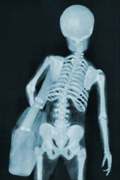 x-ray of skeleton with heavy bag