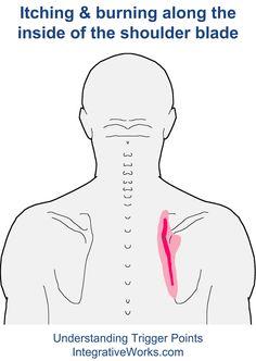 Compreender pontos de gatilho - ardor e prurido ao longo da escápula