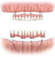 Dental Implants: All-on-4® Treatment Make your Day!