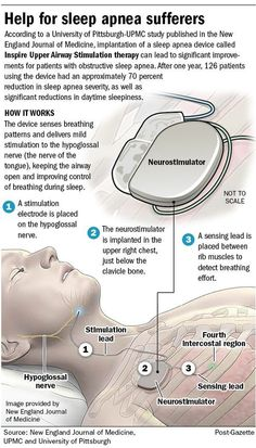 New Sleep Apnea Devices - See more sleep apnea tips at StopSnoringPlease. remedies for anxiety remedies for sleep remedies high blood pressure remedies simple remedies sinus infection What Causes Sleep Apnea, Causes Of Sleep Apnea, Sleep Apnea Remedies, Snoring Remedies, Insomnia Remedies, Sleep Apnea Devices, Sleep Apnea Machine, Sleep Journal, Central Sleep Apnea