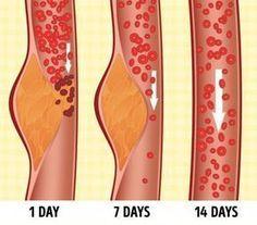 Wassereinlagerungen verursachen oft Schmerzen durch Schwellungen in den Füßen und dem Körper. Wenn du schon einmal an Wassereinlagerungen gelitten hast, dann weißt du, diese sehr unangenehm und schmerzhaft sein können. Wassereinlagerungen sind in der Medizin fachsprachlich auch bekannt als Ödeme.