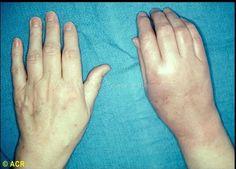 reflex sympathetic dystrophy: hand - diffuse edema, erythema, and flexion deformity Chronic Illness, Chronic Pain, Fibromyalgia, Adrenergic Receptors, Nerve Disorders, Pain Scale, Columbus Georgia, Complex Regional Pain Syndrome, Degenerative Disc Disease