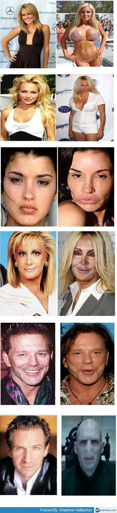 Plastic Surgery Archives - Celebrity Sizes