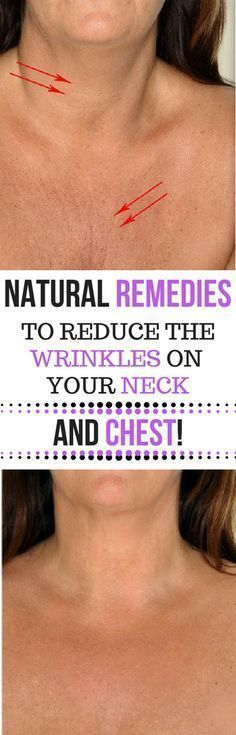 Acne And Oily Skin Get Rid Of Your Acne For Good! Acne is a nightmare cosmetic problem for sure. Many acne patients somet. Home Remedies For Acne, Acne Remedies, Natural Remedies, Health Remedies, Beauty Care, Beauty Skin, Health And Beauty, Beauty Tips, Skin Tips