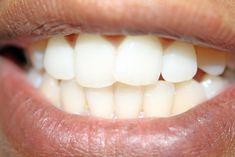 ¿Qué alimentos blanquean los dientes?