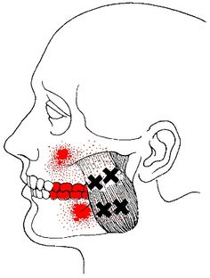 masseter muscle superficial layer trigger points showing attachment and trigger points near the musculotendinous junction and central trigger points of central superficial layer with referred pain patterns