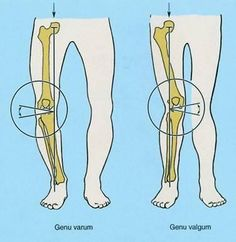 Bow Legs Correction - Genu Valgum or Knock Knee: Abnormal condition of the legs Effective Program for Shaping Your Legs