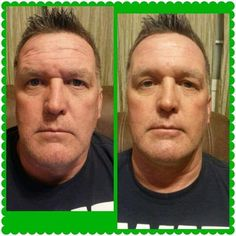 How #amazing is this! Becky talked her #hubby into trying one of her #Facial #Wraps! Take a look at the #difference in his #forehead and the line along the side of his nose! Not to mention his #complexion! I #love how these #natural products really are for #everyone! www.sanjoseskinnywraps.com