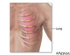 Fibromyalgia & Costochondritis: #Pain in the Chest & Ribs #fibromyalgia