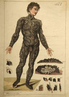 Icythosis  Detailed illustration of skin disorder causing scaling