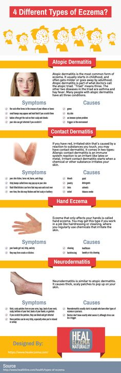 This infographic was created by Heal Eczema Naturally. The most common type of eczema is Atopic Dermatitis, But there a number of different types of eczema that affect people in many different ways. In this infographic, we'll show you the number of different types of eczema, the most common of which we will discuss throughout the infographic.