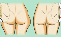 Un guide naturel pour perdre la graisse de l'intérieur des cuisses et les affiner … Résultat Rapide et manifeste !<br>http://www.astucesnaturelles.net/un-guide-naturel-pour-perdre-la-graisse-de-linterieur-des-cuisses-et-les-affiner-resultat-rapide-et-manifeste/
