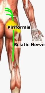 Sciatica, Chiropractic usually eases or stops the pain by correcting the Misaligned Spine that is causing the nerve irritation.