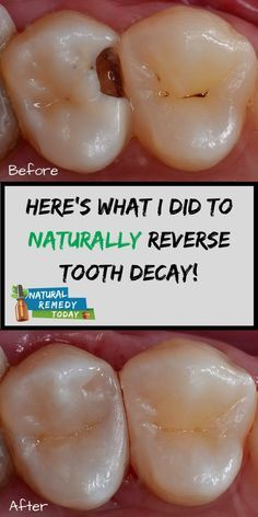 5 amazing ways to heal tooth decay and reverse cavities naturally! 5 amazing ways to heal tooth decay and reverse cavities naturally! Teeth Health, Dental Health, Oral Health, Healthy Teeth, Dental Care, Natural Cures, Natural Health, Reverse Cavities, Tooth Pain