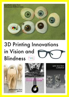 One extremely important use for the advancing 3D printing technology is within the medical field, and more specifically in the field of vision. Check out all the cool new medical advances being produced with 3D printers!