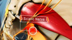 The sciatic nerve is the largest and longest nerve in the body and sciatica (pain along the sciatic nerve) can cause weakness, numbness, tingling and pain.