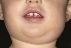 Mumps in children – Effective home remedies and symptoms of mumps Parotid Gland Swelling, Salivary Gland Infection, Ear Infection, Viral Infection, Swollen Lymph Nodes, Head Anatomy, Health Pictures, Pediatric Nursing, Holistic Healing