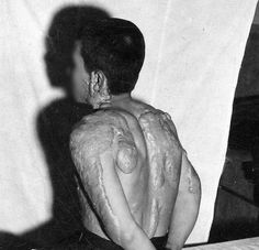 Keloid scars are shown in 1946 on a 17-year-old who had been about 2.5 kilometers from the center of the atomic bomb blast in Nagasaki.